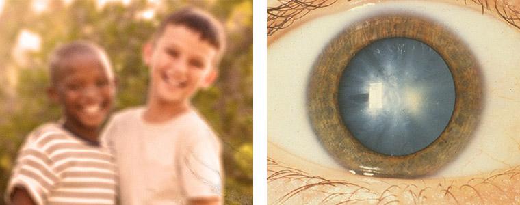 Cataract treatment Kidlington