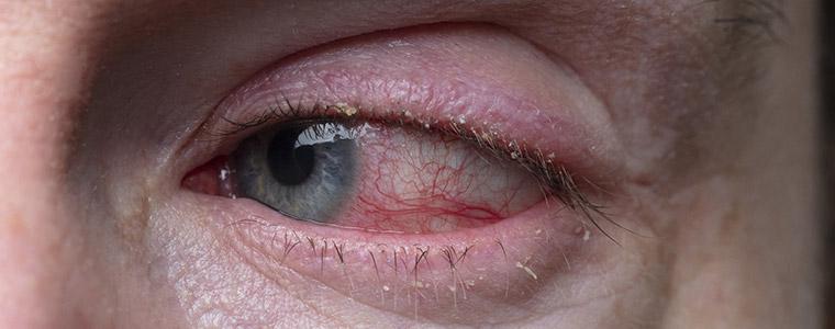 Blepharitis treatment Kidlington
