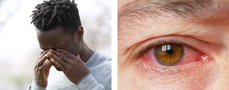 Dry eye treatment Kidlington